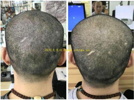 纹发培训教学,发际线设计方案一