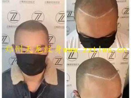 頭皮紋身/紋發