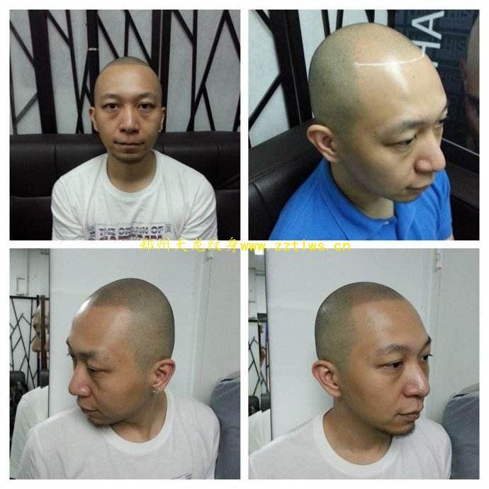 鄭州紋發小編特別提醒:頭油多,脫發需警惕!