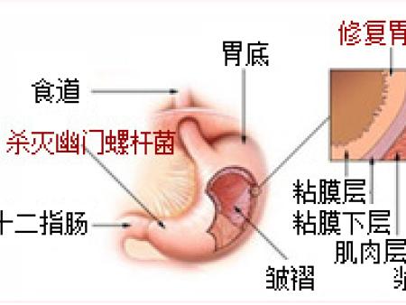 治疗老胃病就用维常乐颗粒真正的特效纯中药