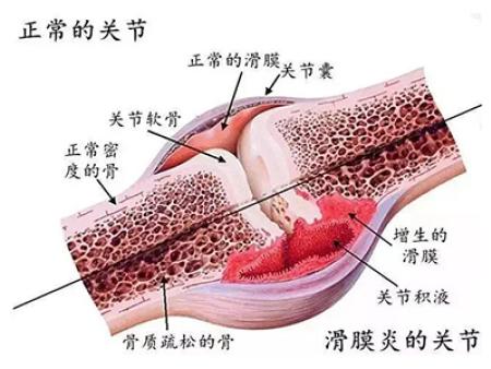 引起滑膜炎的原因及症状