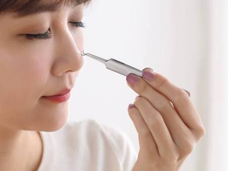 西安祛痣美——清洁做得好,肌肤麻烦少