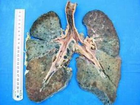 职业病——尘肺