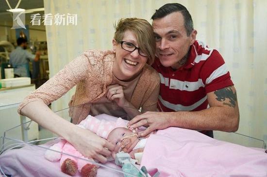 女婴心脏长在体外顽强存活下来 为什么会出现这样的情况?