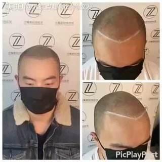 头皮纹身/头皮纹发|头皮纹身-郑州天龙纹身工作室