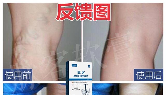 脉客治疗反馈图|脉客-天津佛罗林生物科技有限公司