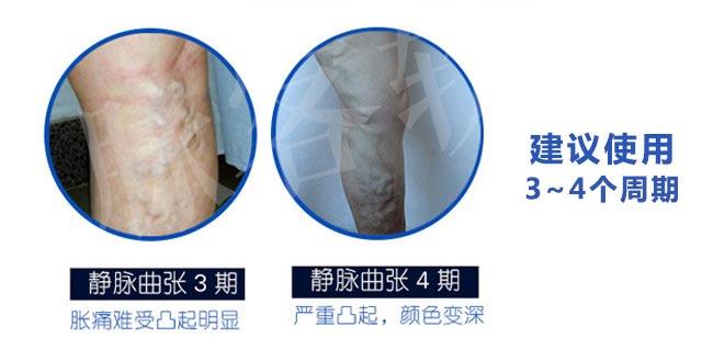 脉客治疗周期|脉客-天津佛罗林生物科技有限公司