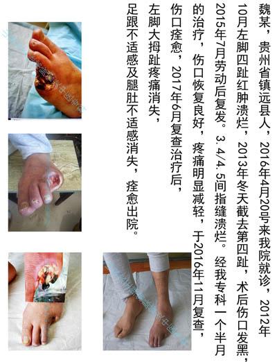 贵州脉管炎复发治疗医院