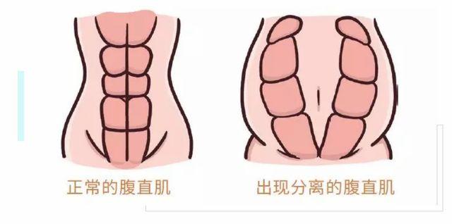 腹直肌分离修复