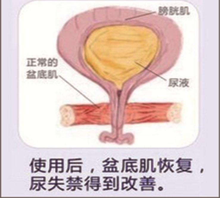 产后盆底肌康复