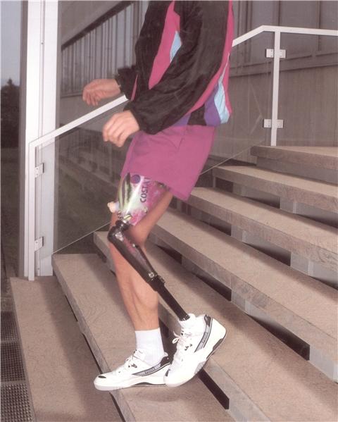 大腿假肢穿戴过程
