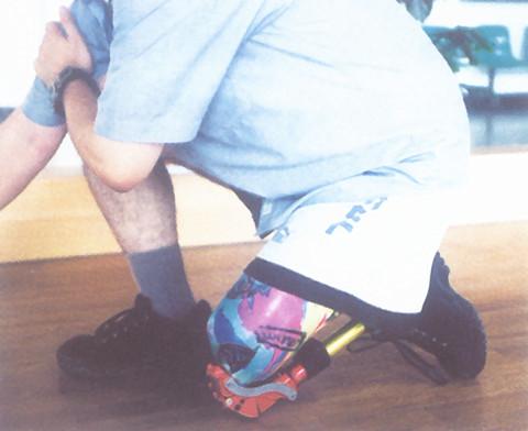膝离断假肢效果图