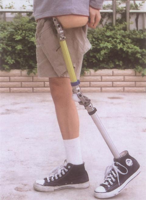 髋离断假肢穿戴过程