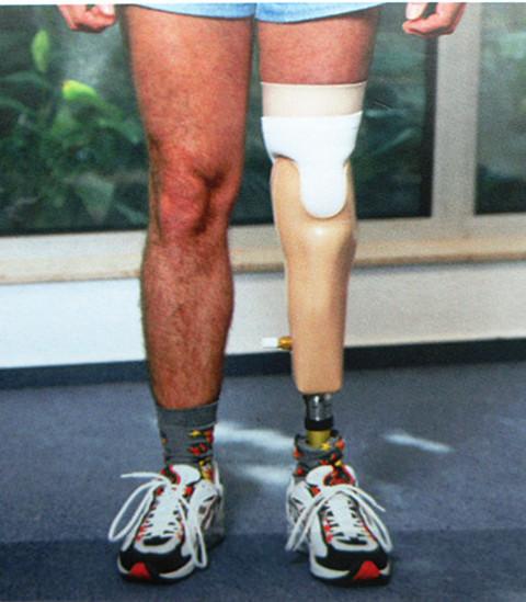 硅胶锁具假肢穿戴效果图