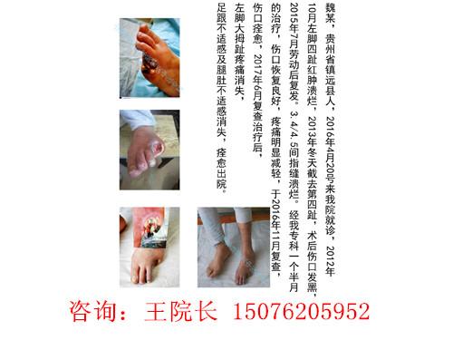 河北脉管炎专科治疗