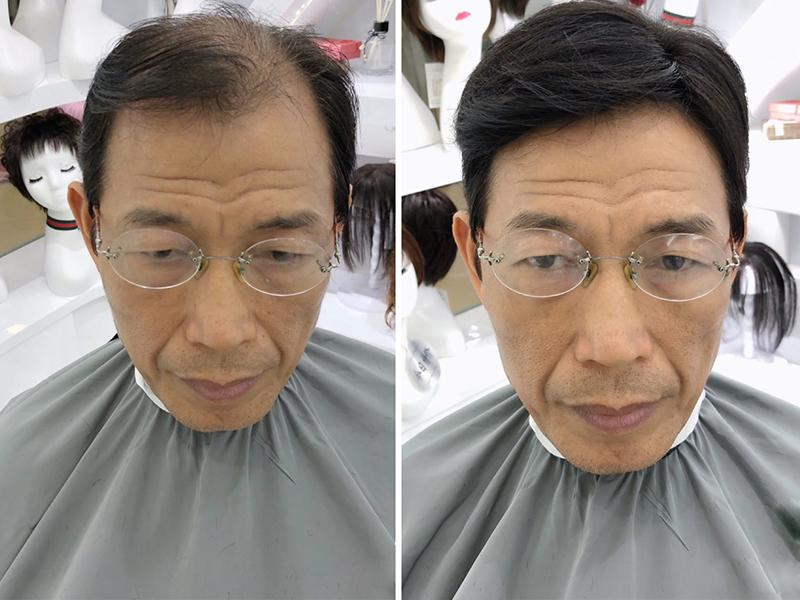 惠州男士假发