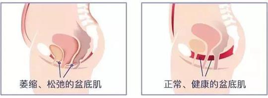 尿失禁治疗仪器