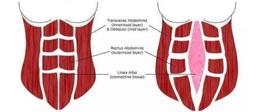 产后腹直肌分离如何康复