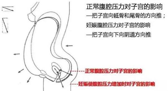 盆底治疗仪
