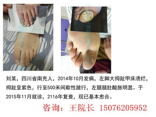 治疗闭塞性脉管炎医院