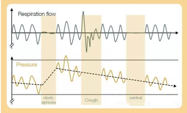 全自动双压力睡眠机AtmoVital(Auto CPAP)