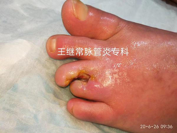 脉管炎患者康复
