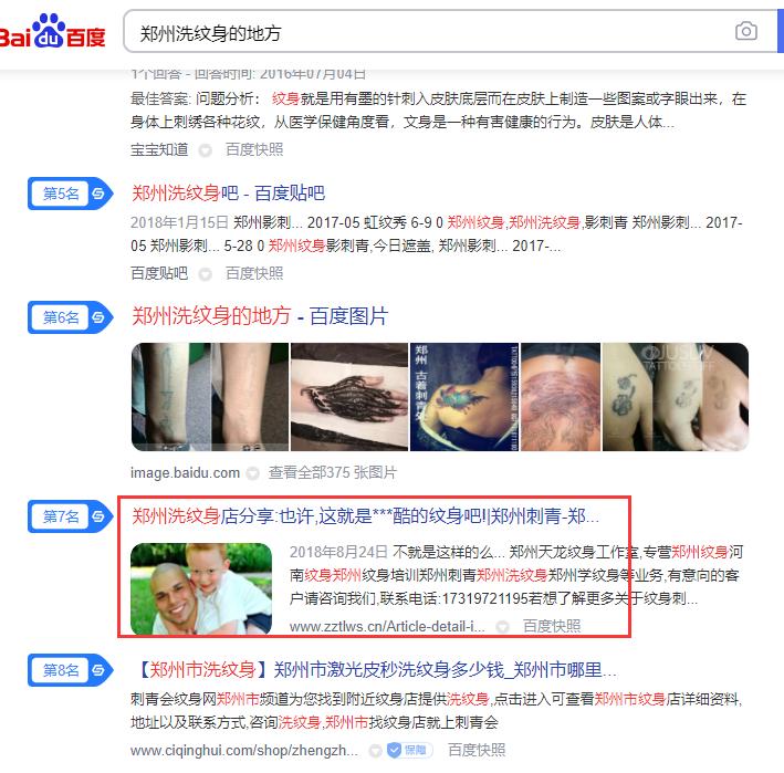 郑州洗纹身的地方
